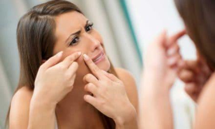 Schnelle Hilfe gegen Hautunreinheiten – die besten Tipps